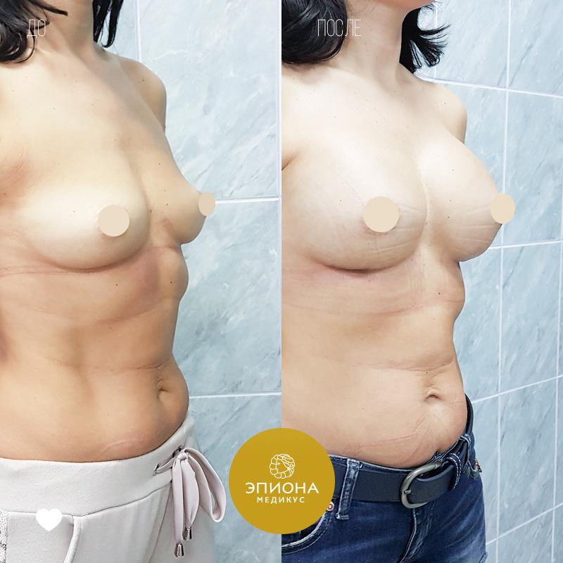 эндопротезирование груди